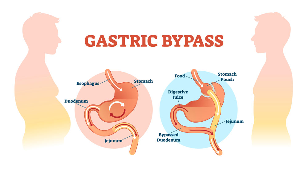 gastric bypass kost